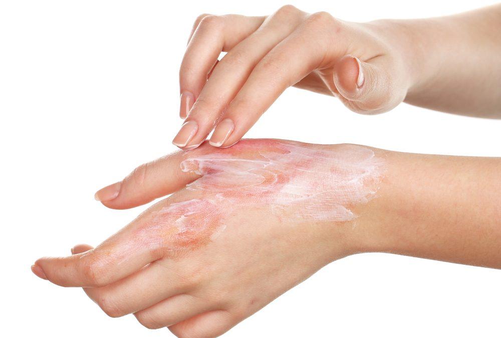 Quemadura de mano