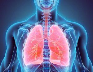 Radiografía con pulmones rojos