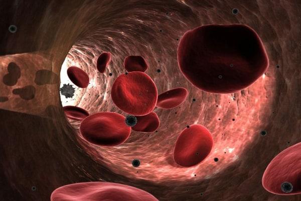 los trastornos e la sangre