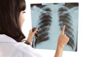 sabes que es la peste pulmonar