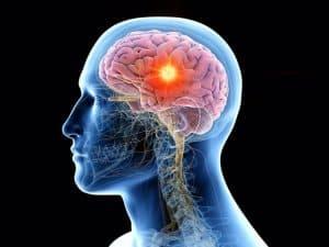 consecuencias del tumor cerebral