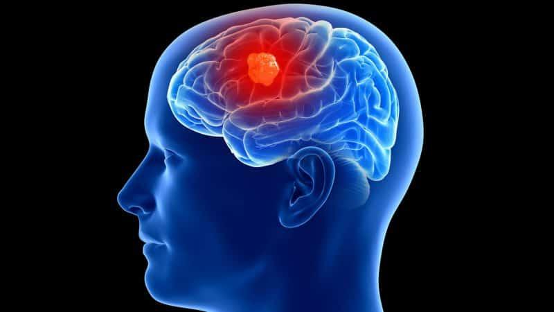 Síntomas frecuentes de un tumor cerebral